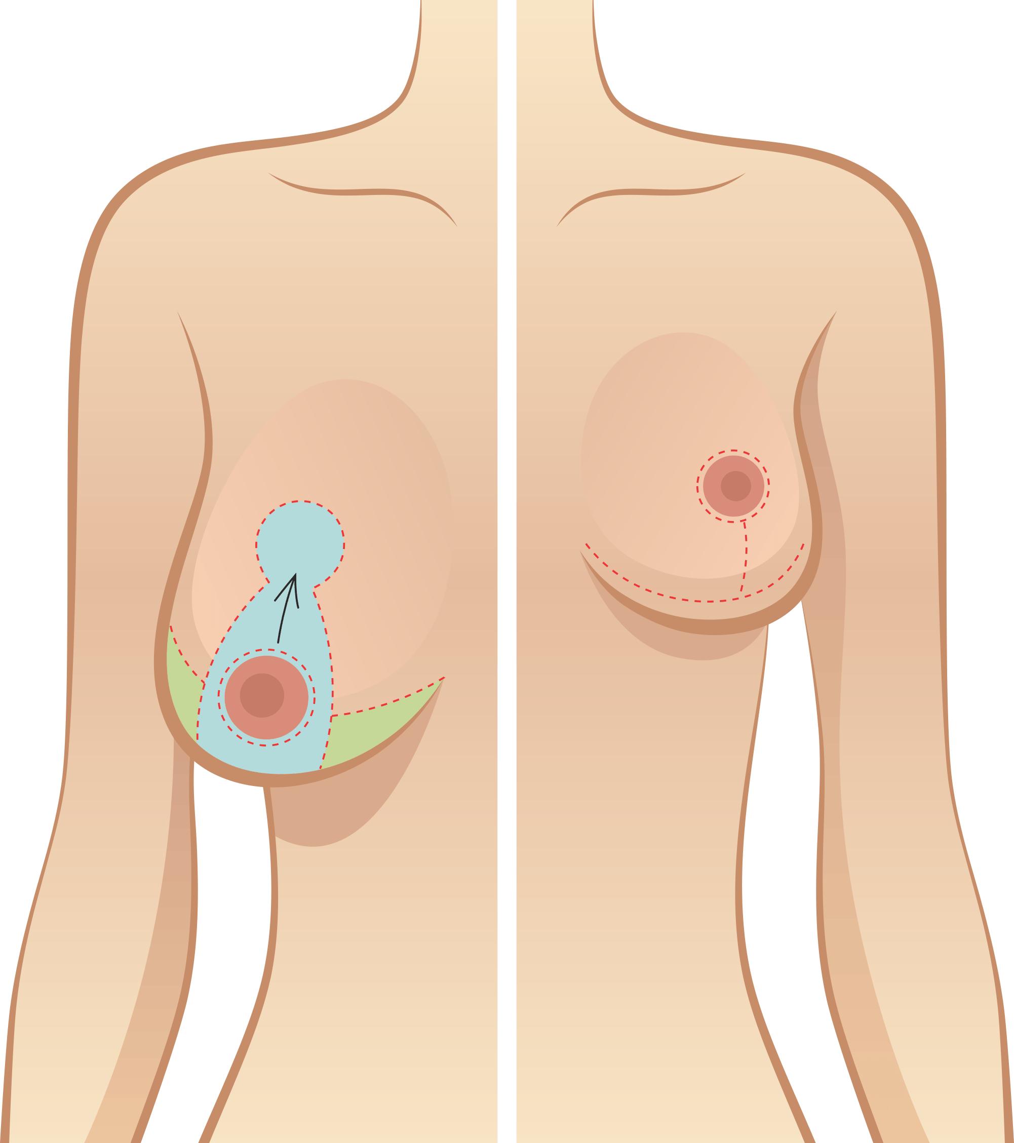 mamoplastia-de-redução