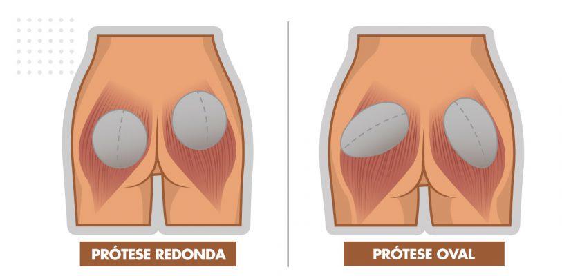 blog-05-protese-de-gluteo-oval-ou-redonda