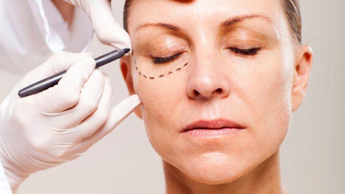 mulher-sendo-preparada-para-cirurgia-plastica-nas-palpebras-1384467200554_1920x1080